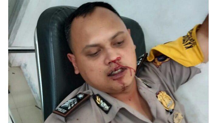 Polisi di Nias Selatan Disundul Warga Hingga Berdarah, Begini Kronologinya