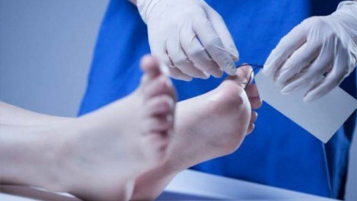 Komnas HAM Kehendaki Autopsi Ulang Jenazah 6 Anggota Laskar FPI, Ini Respons Keluarga